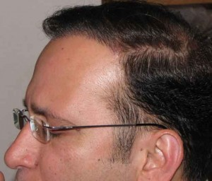 After Hair Implant